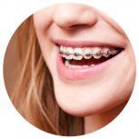 Oral-B speciális fogkefék